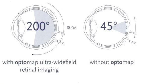 optos-diagram